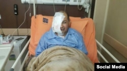 Alireza Rajaie, Iranian journalist and activist, after extensive surgery that left half of his face, including an eye, removed, August 2017