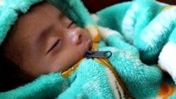 Death Stalks 1 Million Afghan Children Facing Malnutrition