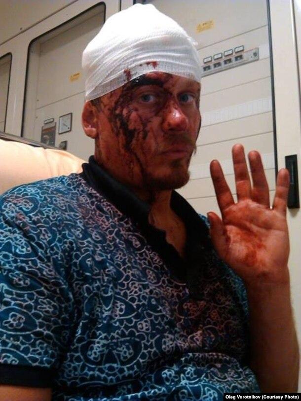 Олег Воротников после избиения в Венеции
