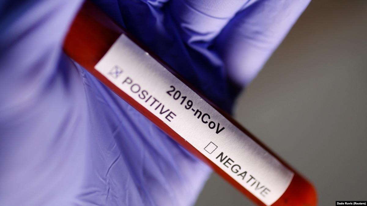 Франция: зафиксирован пятый случай заболевания на новый коронавирус