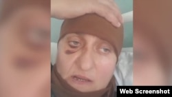 Избитая в Калмыкии уроженка Чечни Табарик Дудаева