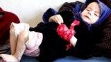 Death Stalks 1 Million Afghan Children Facing Malnutrition/ video grab