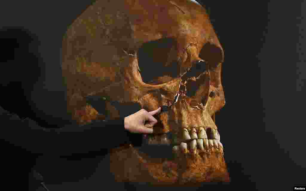 The skeleton was found to have a curved spine and signs of severe battle injuries, matching historical descriptions of King Richard III, the last British king to die in battle.