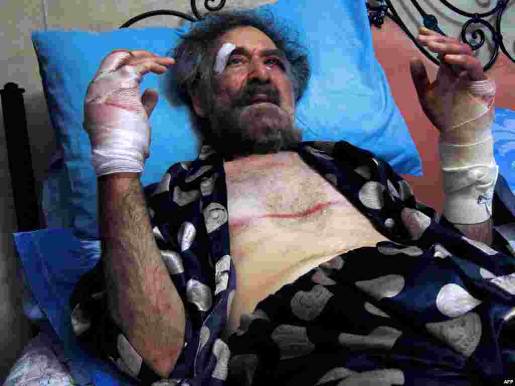 Wounded cartoonist Ali Ferzat rests in bed at his residence in Damascus after being grabbed and beaten up by pro-regime militiamen.
