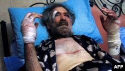 Раненый в Дамаске оппозиционный карикатурист Али Фарзат