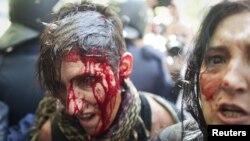 Десятки людей пострадали в результате столкновений с полицией во время марша горняков по улицам Мадрида, Испания.