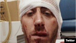 Vladimir Kovačević nakon napada ispred zgrade u kojoj živi