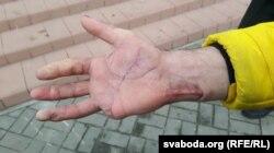 Пакалечаная рука Літвінава