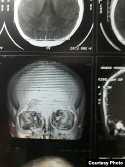 Синфдоши томонидан калтакланган Асрор Тошмуродовнинг бош чаноғи шикастланганига оид рентген сурат