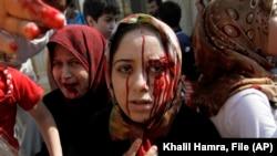 August 2012. Femei siriene rănite tocmai ajung la un spital de campanie, după un atac aerian care le-a distrus casele din Azaz, o localitate în apropiere de Alep.