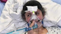 Armenia - patient at an intensive care unit in Yerevan treating COVID-19 - coronavirus pandemic - screen grab
