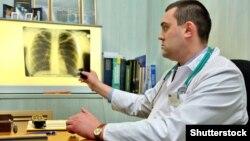 Врач рассматривает снимок легких.