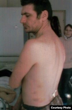 Житель Костаная Александр Герасимов со следами побоев на теле. 2007 год.
