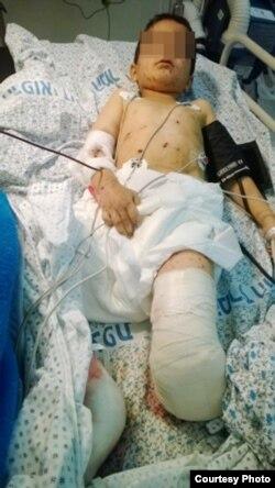 """6-летний сирийский мальчик в израильской больнице """"Зив"""" после операции по ампутации ноги"""