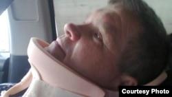 Александр Павлюченконың мойнына зақым келген кездегі суреті. 2013 жыл.