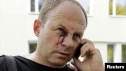 Беті жарақаттанған белорус фотожурналист қамаудан шыға сала телефон соғып тұр. Минск, 18 қыркүйек 2012 жыл.