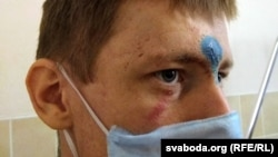 Андрэй Вярбіцкі, паранены падчас разгону пратэсту ў Магілёве, 27 верасьня