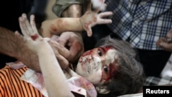 یک طفل سوری که در حملات هوایی زخمی شدهاست.