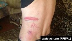 Հայաստան-Արա Մուրադյան, ով ծեծի է ենթարկվել ոստիկանության կողմից 09 նոյեմբեր, 2018