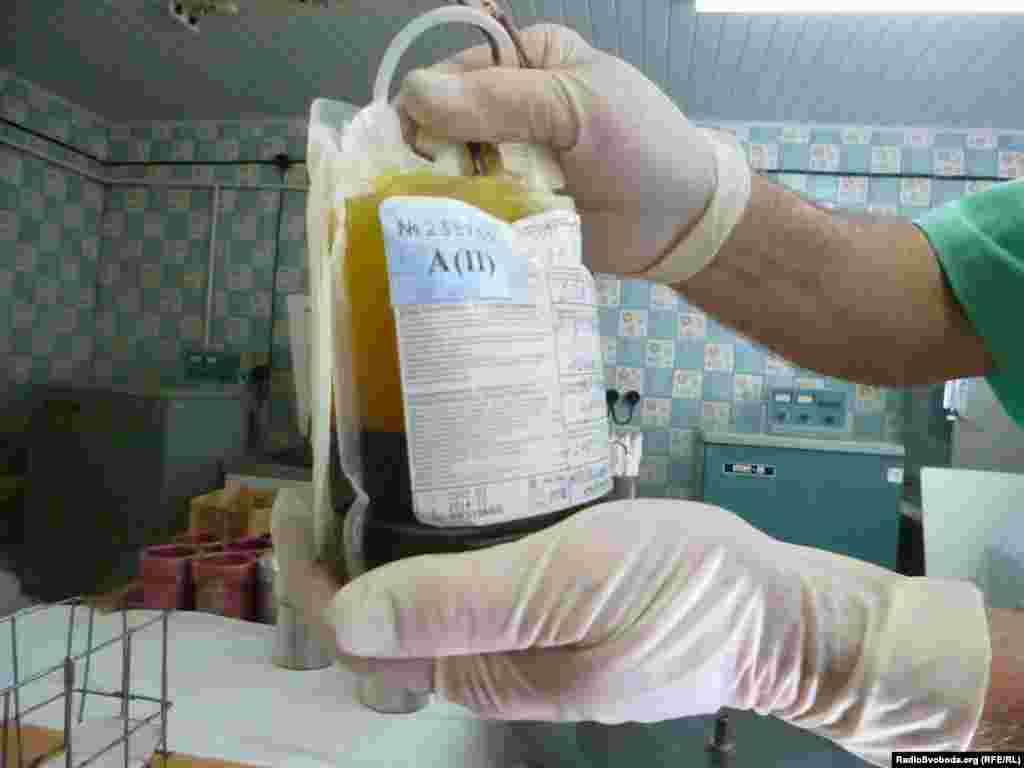 Донорська кров готова до переливання: сиворотка і плазма