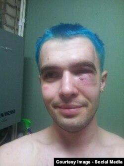 Иван Красвитин после нападения, Сызрань, 2016