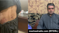 عبدالمتین اچکزی خبرنگار تلویزیون پشتو زبان خیبر