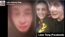 Liam Tong wrote that his injuries from the attack included a fractured nose and damage to several of his teeth that left him in excruciating pain.