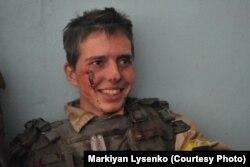 Один из самых молодых бойцов добровольческого батальона ранен после атаки. Иловайск, август 2014 года. Фотограф Маркиян Лысенко