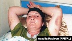 Natella Məmmədova