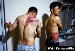 Ziariștii afgani de la Etilaatroz, Neamat Naqdi (stânga) și Taqi Daryabi își arată rănile în redacția lor din Kabul după ce au fost eliberați de talibani - 8 septembrie 2021