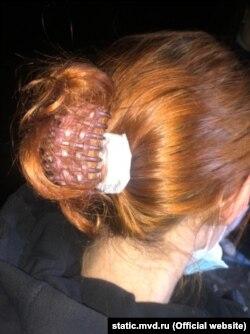 Наркотики у зачісці, виявлені у жительки Сімферополя