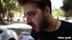 Una dintre victimele atacului protestatarilor anti-LGBT.