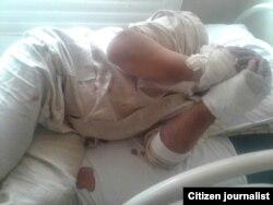 Один из отравившихся зоокумарином узбекистанцев истекает кровью.