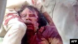 Bu jasadning Qaddafiyniki ekani aytilmoqda.