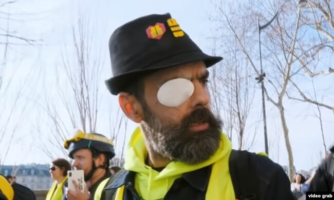 """Кадр из фильма: Жером Родригез, один из лидеров """"желтых жилетов"""", получивший ранение во время столкновений с полицией"""