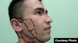 Абдулло Гурбати после нападения разместил свое фото со следами избиения в Фейсбуке