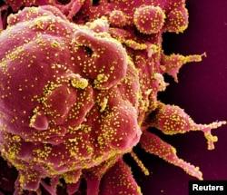 Человеческая клетка, зараженная коронавирусом