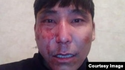 Выложенная в Facebook'е фотография Азамата Раева после того, как, по его словам, он был избит неизвестным.