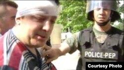 Снимателот на Телма Жарко Пачемски беше повреден на протестите пред општина Чаир. Тој беше погоден со камен во глава. Фото: ТВ Телма.
