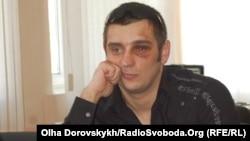 Donetsk journalist Artyom Furmanyuk says he was beaten by the police.