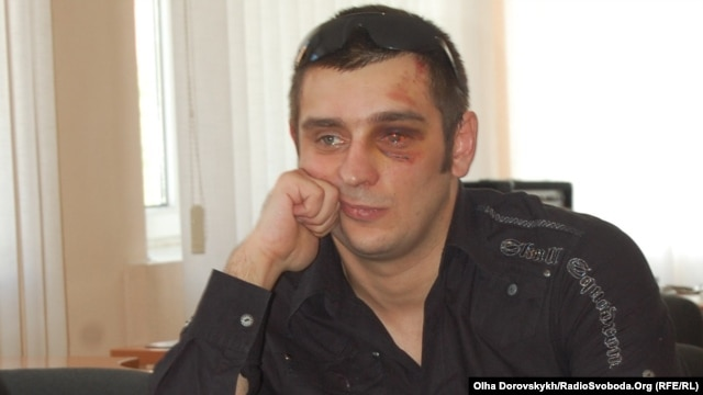Donetsk journalist Artyom Furmanyuk says he was beaten by the police.