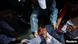 Үкіметке қарсы шеруге шыққандар мен қауіпсіздік күштері арасындағы қақтығыста жараланған адамға дәрігерлер жәрдем көрсетіп жатыр. Сана, Йемен, 19 қыркүйек 2011 ж.