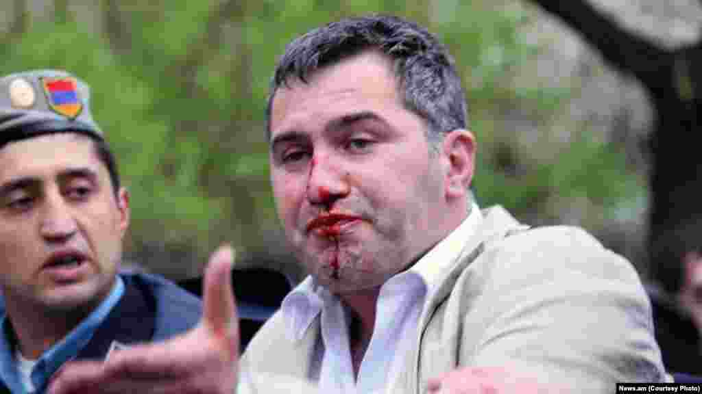 Armen Martirosian of Armenia's Heritage party is detained by police while participating in the opposition rally.