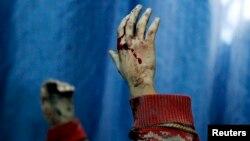 دستان یک کودک مجروح سوری