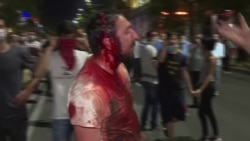 Нічні сутички із поліцією у Грузії: сльозогінний газ, травматична зброя та водомети – відео
