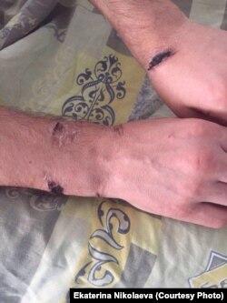 Через две недели после пыток руки выглядели так