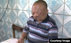 35-летний житель города Семей Восточно-Казахстанской области Берик Сыздыков.