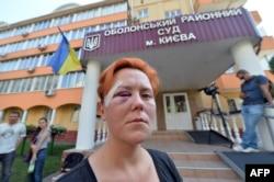 Анна Гуцол после нападения