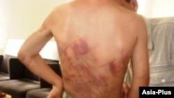 Следы побоев на теле ребенка, избитый своим отцом, Яванский район, 30 июня 2011 года.