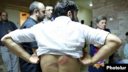 Armenia - An Armenian cameraman shows an injury sustained during the dispersal of an opposition rally in Yerevan's Sari Tagh neighborhood, 30Jul2016.